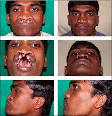 cleft lip repair primary abbe flap in bilateral cleft lip repair open i