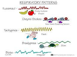 Irregular Breathing Patterns
