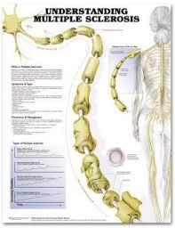 Ms Multiple Sclerosis Chart Understanding Multiple Sclerosis Laminated Lfa 99716