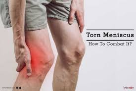 torn meniscus how to combat it by