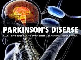 「Parkinson's disease.」の画像検索結果