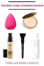 best makeup to cover acne but i know this will i feel loved no matter how best makeup to cover acne how
