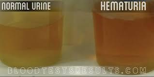 hematupura2