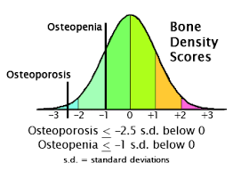 Bmd Z Score Chart The Infamous T Score And Neglected Z Score Better Bones