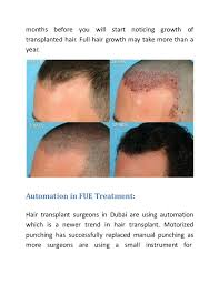 hair transplant how it works how fue hair transplant process works