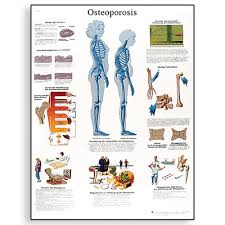 Biology Charts And Posters Osteoporosis Chart English Vr1121l 1001472 Posters