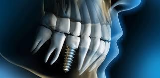 Image result for dental implants