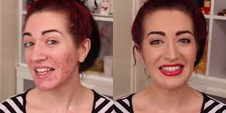 how to cover up a bad breakout and acne scars with makeup