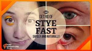 are stye of eye conious