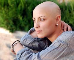 both chemotherapy and radiation can cause hair loss nausea and other severe side effects