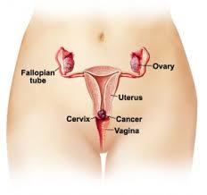 Image result for Obat kanker denature