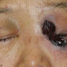 What Is Your Diagnosis? Rhino-orbital-cerebral Mucormycosis | MDedge  Dermatology