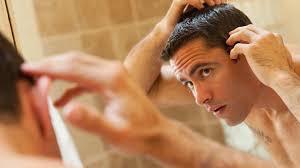 does rogaine work for hairline vertex