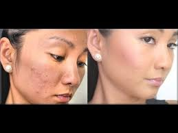 full coverage makeup for acne 2017 ideas pictures tips about make up