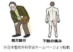 「腰椎椎間板ヘルニア 症状」の画像検索結果