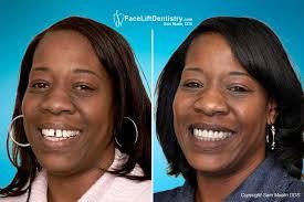 fixing buck teeth protruding teeth