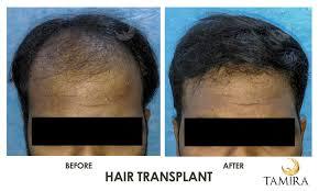 Hair Transplant In Chennai No 1 Hair Loss Treatment