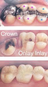 Dental Inlay Inlays And Onlays Dentist Edina Mn Dental Education Library