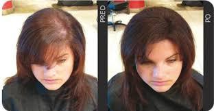 Jak Zahustit Vlasy 3 Zaručené Tipy Prorebelkycz
