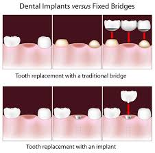 Good Candidate Caven Dental Am I A Good Candidate For Dental Implants