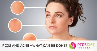 Pcos And Acne What Can Be Done Pcos Diet Support