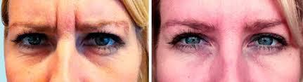 Vitamine A-zuur en retinol