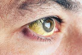 Pics Of Eyes Pictures What Your Eyes Say About Your Health