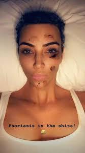 a selfie of kim kardashian s psoriasis flareups