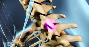 Whats A Facet Symptoms And Diagnosis Of Facet Joint Problems