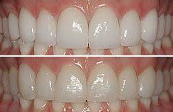 Bl1 Bl3 Tooth Shade Cosmetic Dentistry Porcelain Veneers
