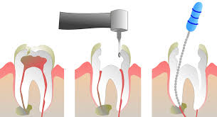 How long does a root canal take? What S The Best Way To Pay For A Root Canal