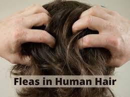 fleas in human hair causes symptoms