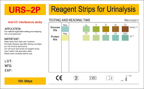 Urine Test Strips Color Chart Glucose Test Strip Color Chart Best Picture Of Chart