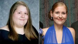 Study Finds Bariatric Surgery Helps Patients and Family Members Lose ...