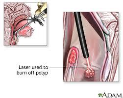 laryngoscopy. procedure, part 2 laryngoscopy