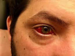 got a subconjunctival hemorrhage popped blood vessel in eye