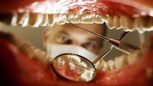 How often do you need to see a dentist? - BBC Future