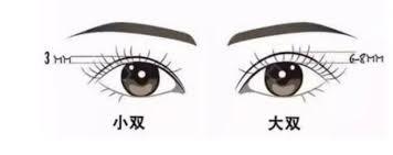 重庆军科:割了双眼皮,为什么变丑了?_颜源社整形网
