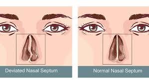 deviated septum sinus surgery center