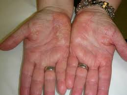 WSIAT | Medical Discussion Paper - Allergic Contact Dermatitis ...
