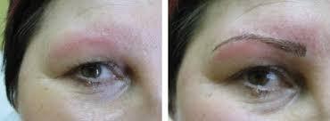 Odstranění Permanentního Makeupu Salon Andělské Krásy