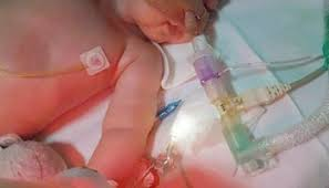 voices in bioethics sep 14 medical futility parental ldquorightsrdquo a glimpse into the charlie gard case acircmiddot voices in bioethics