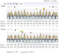 Periodontal Charting Online Free Periodontal Charting Dental Software Uk Software 4 Dentists