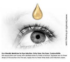Cure Eye Infection with Honey in 24 Hours