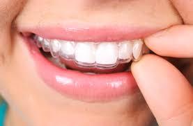 Achieve Straight Teeth Minus the Metal: Invisalign in Nashua - Dental Designs of New England