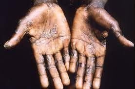 possible monkeypox exposure