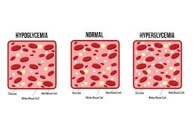 Hyperglycemia Blood Sugar Levels Chart Hyperglycemia Vs Hypoglycemia Lark Health
