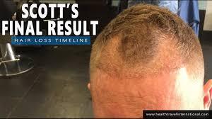 Fue Hair Transplant Final 21 Month Result Timeline Hair Loss Treatment Baldness For Men 2016