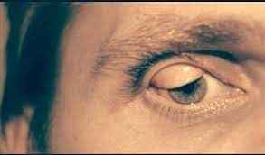 Want a similar filter for your brand? Itsme G On Twitter Unlikelymedicalprocedures Permanent Eyelid Flip Sexy