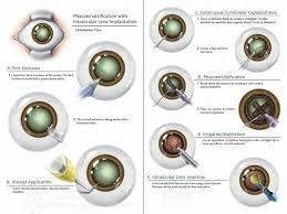 Phacoemulsification With Intraocular Lens Implantation Ami 2018